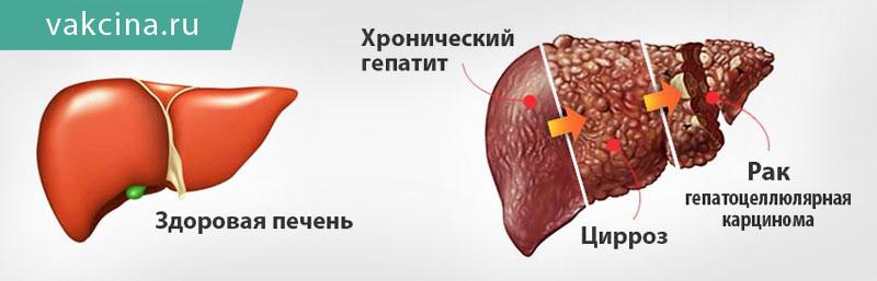 выбора гепатит печени в картинках бочки нужно подготовить